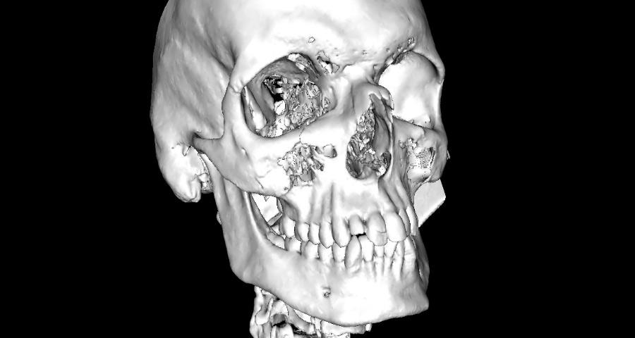 Radiologie 3D Maxillo-faciale